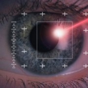 chirurgie laser yeux