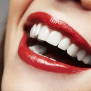 femme-sourire-dents-blanches