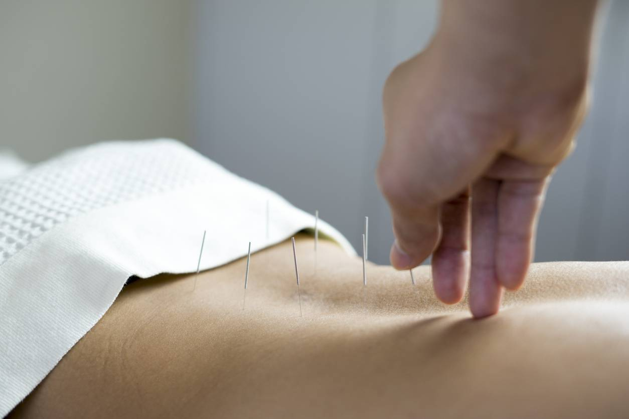 acupuncture acupunctrice Paris