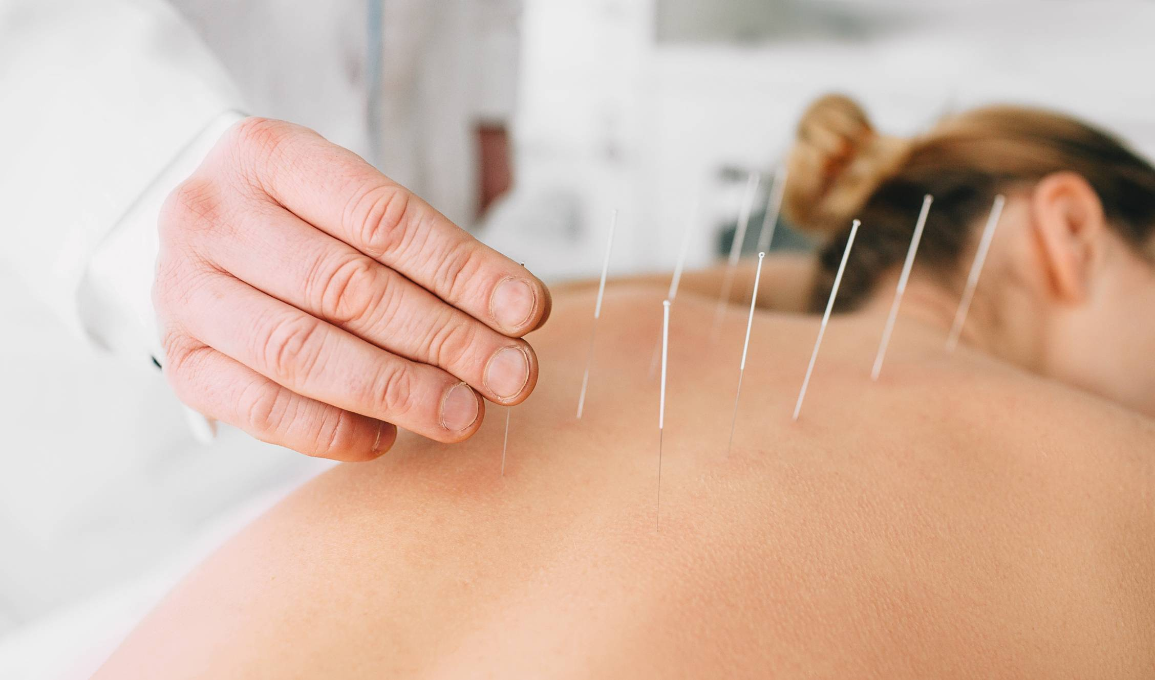 acupuncture bienfaits